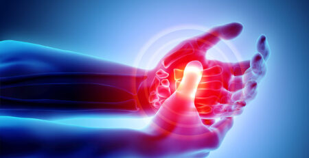 Another Report from the Arthritis Foundation Concerning CBD